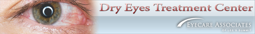Dry Eyes | Eyecare Associates